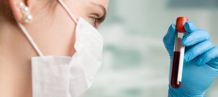 Билирубин - анализ крови, высокий и низкий уровень билирубина