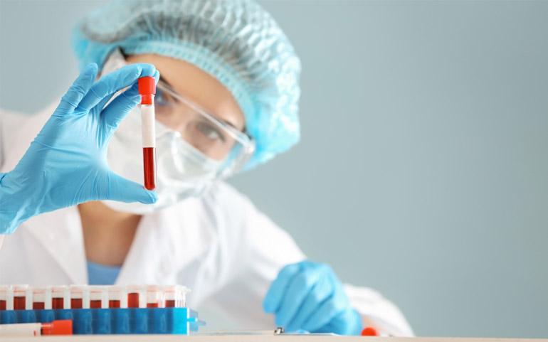 MCH в анализе крови - норма MCH у детей и взрослых