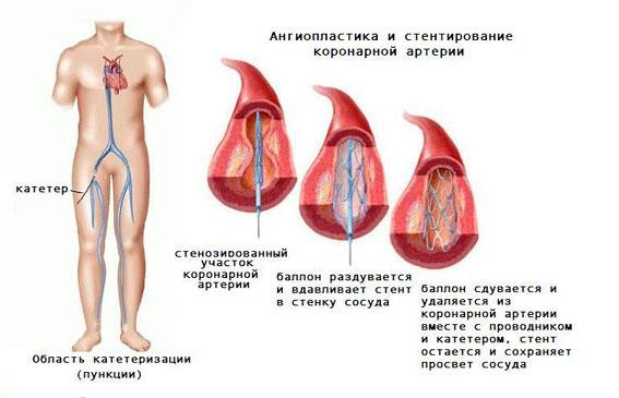 Проведение ангиопластики и стентирования во время коронарографии