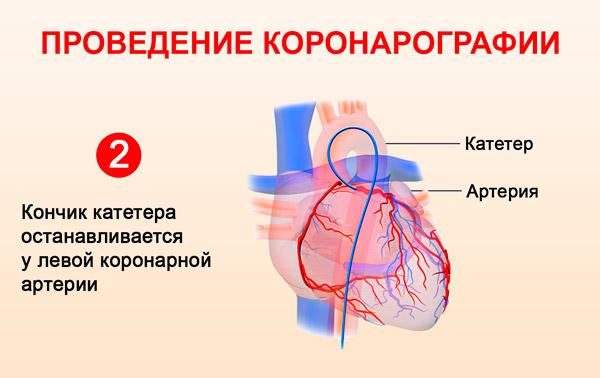 Проведение коронарографии: кончик катетера останавливается у левой коронарной артерии