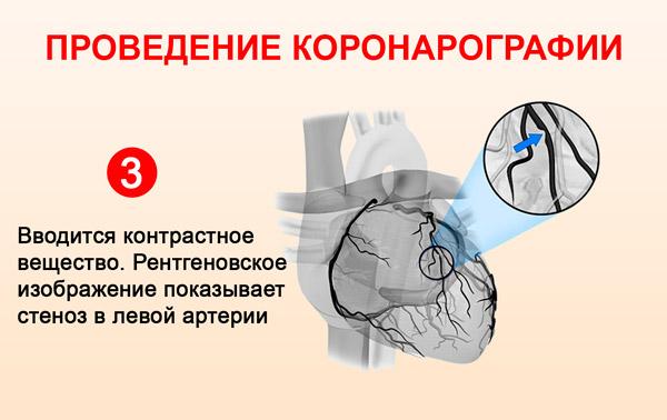 Проведение коронарографии: вводится контрастное вещество
