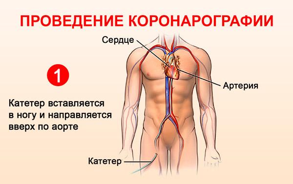 Проведение коронарографии: катетер вставляется в ногу и направляется вверх по аорте