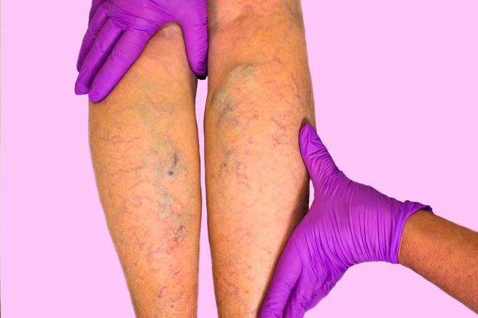 Причины тромбозов
