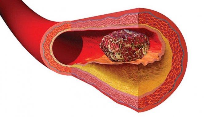 Тромбозы артерий и вен